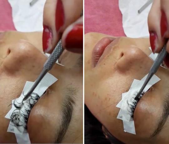 Cô gái Thái Lan suýt hỏng mắt vì nối mi bằng keo dán sắt - Ảnh 2.