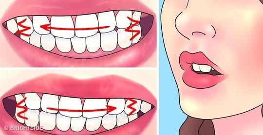 Mẹo chữa nghiến răng ban đêm - Ảnh 1.
