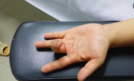 Ai dễ mắc bệnh lý ngón tay lò xo? - Ảnh 1.