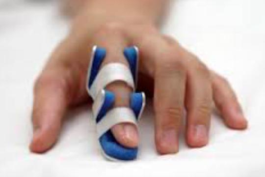 Ai dễ mắc bệnh lý ngón tay lò xo? - Ảnh 2.