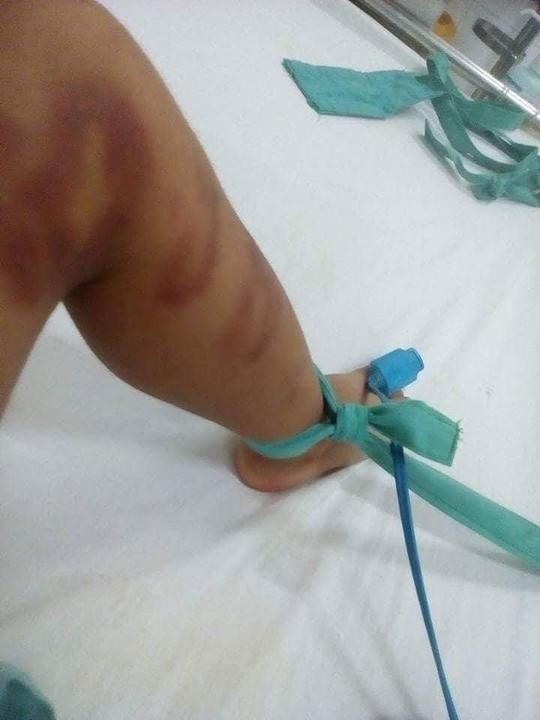 Bắt nghi phạm đánh đập con riêng của người tình nhập viện - Ảnh 2.