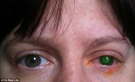 Mù mắt chỉ vì 20 phút đeo kính áp tròng xuống hồ bơi - ảnh 1