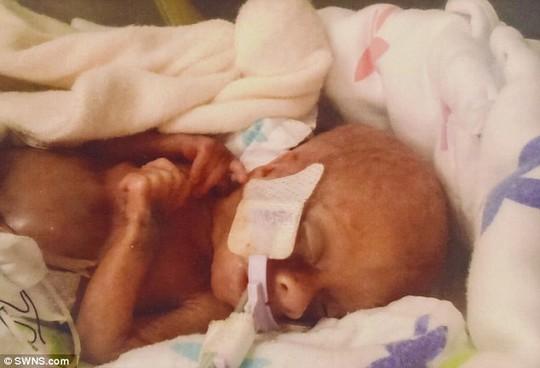 Mẹ sắp phá thai lưu, con bỗng ra đời: chỉ 340 g, vẫn sống khỏe! - Ảnh 2.