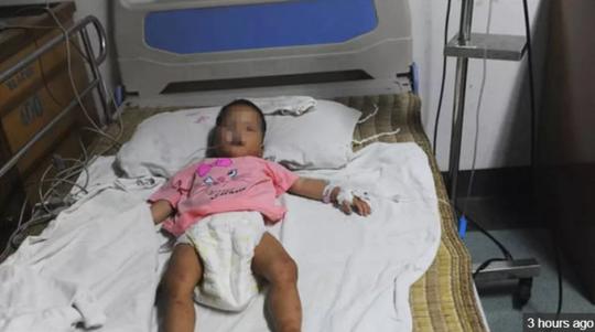Bé gái 22 tháng tuổi sống sót sau 4 ngày lạc nơi rừng núi - Ảnh 1.