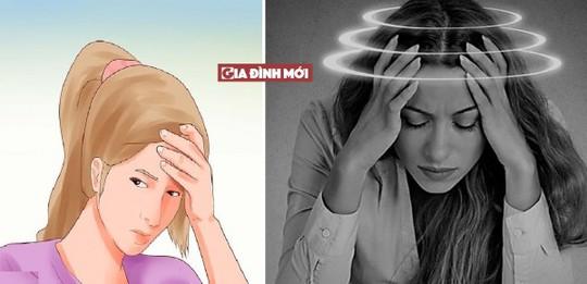 Cách giảm đau đầu chóng mặt không dùng thuốc - Ảnh 1.