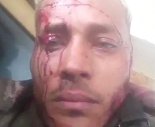Venezuela: Chiến dịch đẫm m
