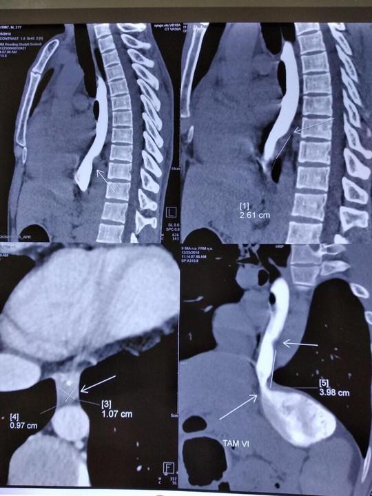 Kỳ lạ chiếc xương cá nằm lọt trong khối u xơ của nam thanh niên - Ảnh 1.