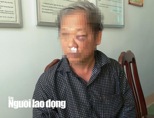 Phóng viên VTV bị hành hung dã man sau khi báo tin bắt đất tặc - Ảnh 1.