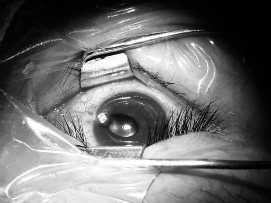 Bác sĩ rùng mình rút chiếc đinh uốn cong trong mắt bệnh nhân - Ảnh 1.