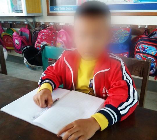 Vụ cô giáo tát học sinh lớp 1 nhập viện ở Quảng Bình: Công an vào cuộc - Ảnh 1.