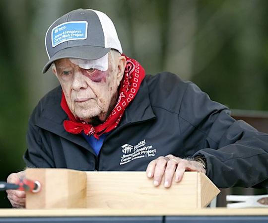 Cựu Tổng thống Carter nhập viện vì chảy máu não - Ảnh 1.