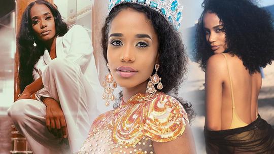 Nhan sắc Hoa hậu Thế giới 2019 người Jamaica gây tranh cãi - Ảnh 2.