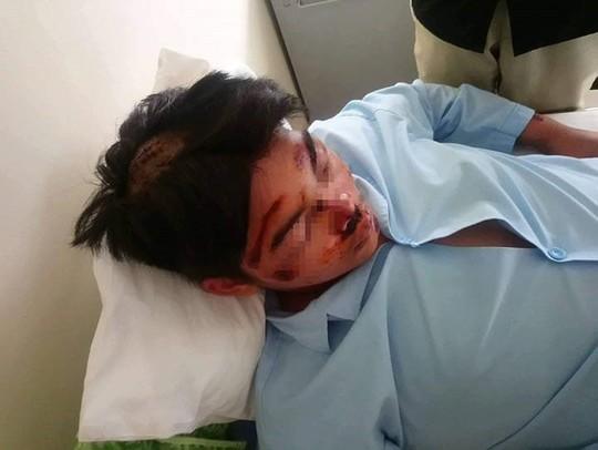 2 học sinh nhập viện sau khi đánh nhau - Ảnh 1.
