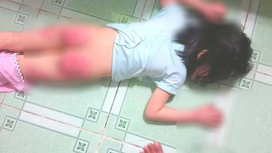 Xót xa người mẹ cầu cứu vì con gái 6 tuổi bị cha ruột hành hạ dã man - Ảnh 1.