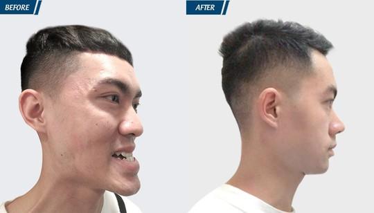 Cắt hàm giúp chàng trai nhiều năm không nhai được - ảnh 2