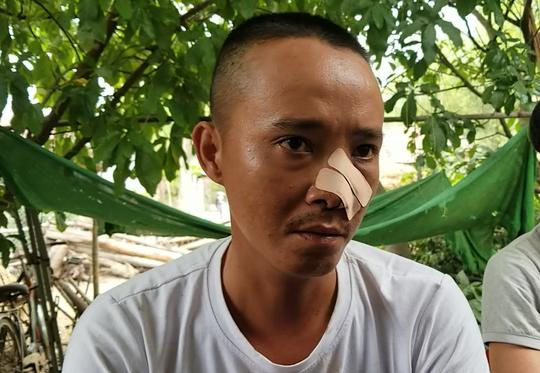Nhóm thanh niên đến tận nhà truy sát 3 cha con: Lời kể của nạn nhân - Ảnh 1.