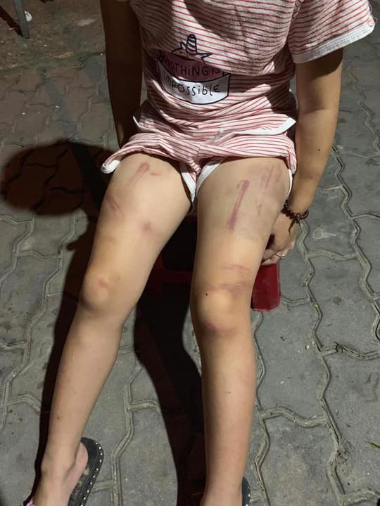 Xôn xao hình ảnh cháu bé bị đánh đập bầm dập khắp người - Ảnh 5.