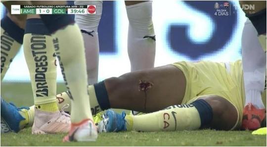 Dính chấn thương ghê rợn, cựu sao Barcelona phải nhập viện cấp cứu - Ảnh 5.