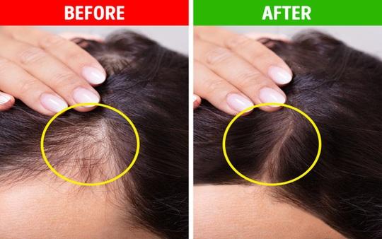 Mẹo dưỡng tóc đơn giản tại nhà - Ảnh 9.