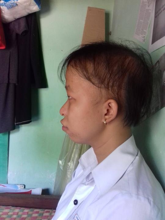 Nước mắt hạnh phúc của cô gái hói đầu - Ảnh 1.