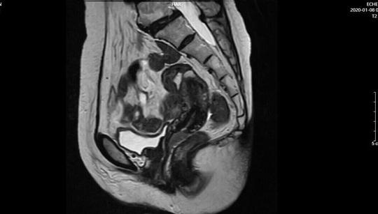 Nội soi cắt toàn bộ âm đạo điều trị bệnh ung thư hiếm gặp - Ảnh 1.