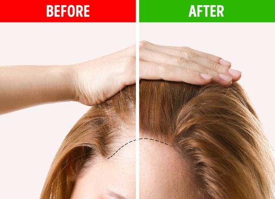 9 mẹo hô biến tóc mỏng, gãy rụng trở nên chắc khỏe - Ảnh 6.