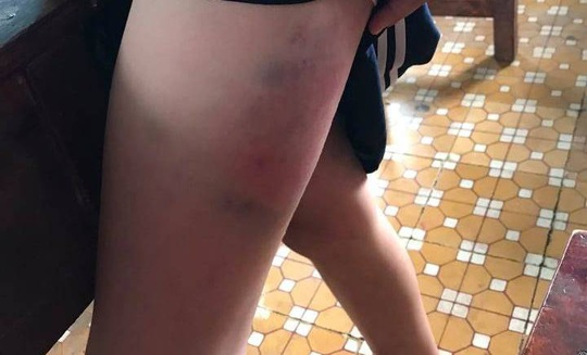 Tạm đình chỉ cô giáo đánh bầm dập bé gái lớp 3 - Ảnh 2.