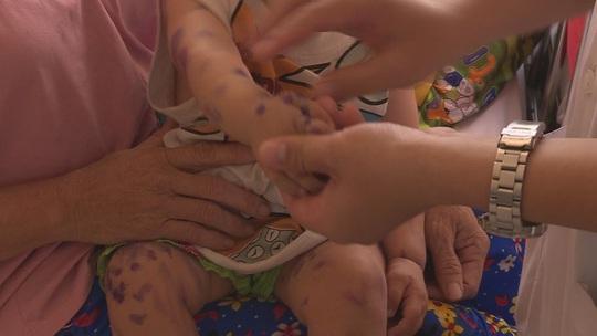 Đắk Lắk: Bệnh tay chân miệng bùng phát, trường học xây dựng kế hoạch phòng chống - Ảnh 2.