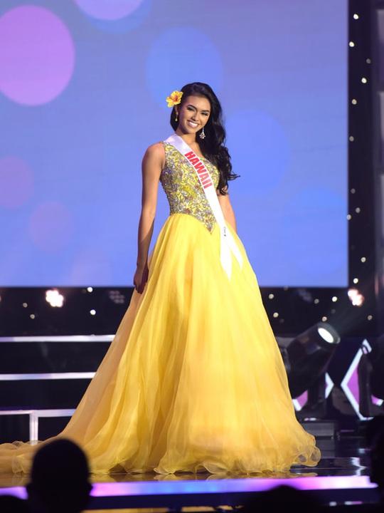 Nhan sắc cô gái đăng quang Hoa hậu Tuổi Teen Mỹ 2020 - Ảnh 11.