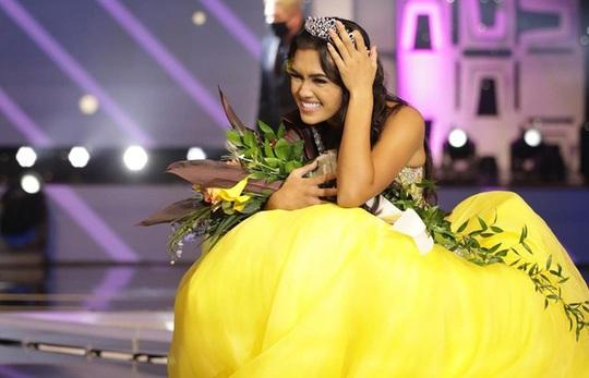 Nhan sắc cô gái đăng quang Hoa hậu Tuổi Teen Mỹ 2020 - Ảnh 2.