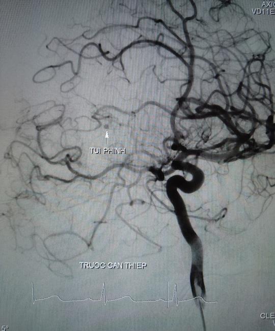 Cứu sống 2 bệnh nhân bị đột quỵ do xuất huyết não - Ảnh 1.