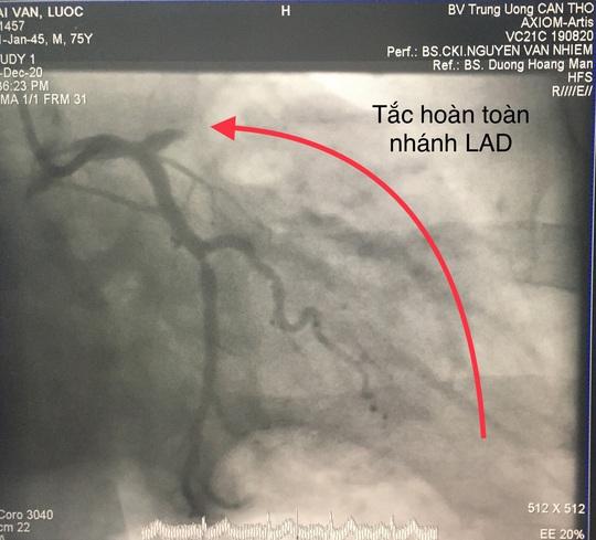 Trong 2 ngày, Bệnh viện ở miền Tây cứu sống 10 bệnh nhân nhồi máu cơ tim - Ảnh 1.
