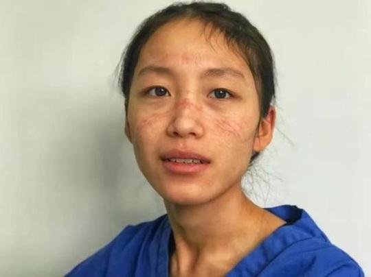 Giữa đại dịch virus corona, nữ y tá hôn bạn trai qua tấm kính cách ly - Ảnh 2.