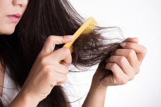 Giải pháp ngăn ngừa rụng tóc sau sinh - Ảnh 1.