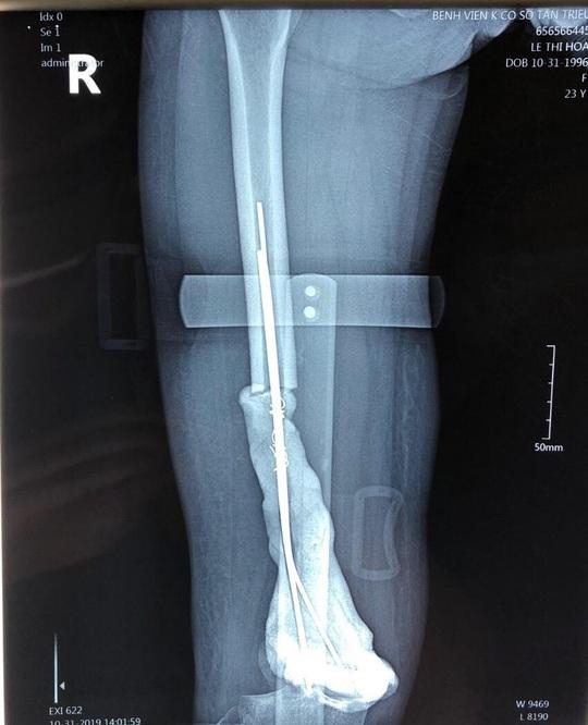 Cô gái 24 tuổi được thay toàn bộ xương đùi kim loại - Ảnh 2.