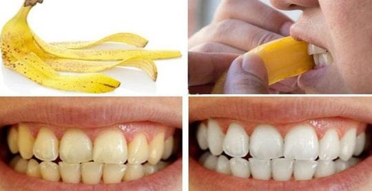 photo 2 1587533068353579655257 - Bí quyết từ thiên nhiên để có hàm răng trắng sáng ngay tại nhà
