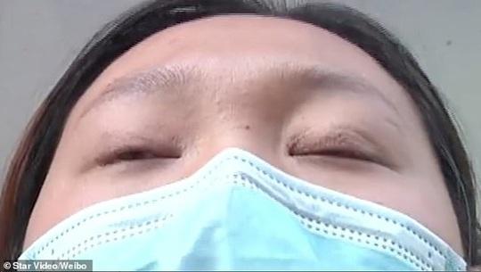Người phụ nữ ngủ vẫn mở mắt sau cắt mí 1 năm - Ảnh 1.