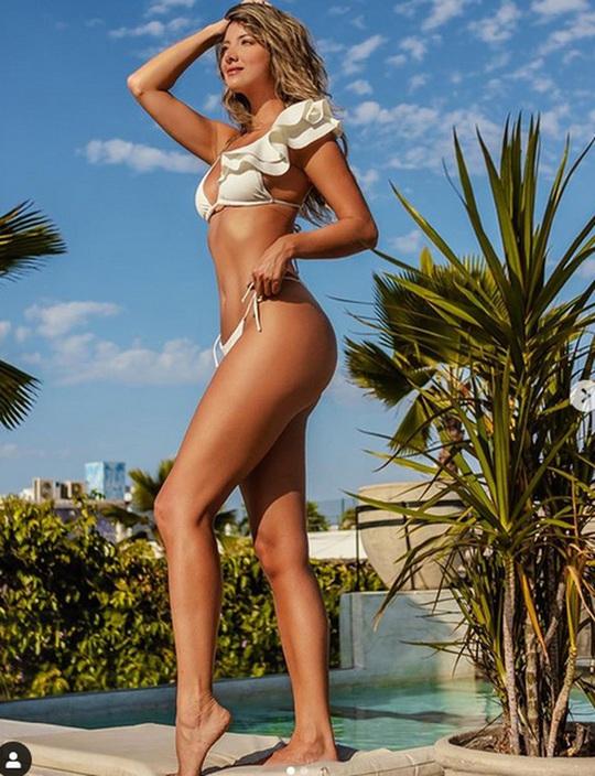 Hoa hậu hoàn vũ bị cưa 1 chân - Ảnh 9.