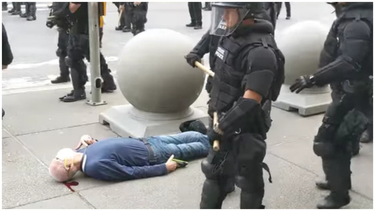 Video: Cảnh sát Mỹ đẩy cụ ông đập đầu xuống đất ngất lịm - Ảnh 1.