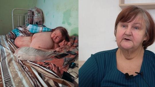 Người phụ nữ chết vì giảm cân 200 kg trọng lượng cơ thể - Ảnh 1.