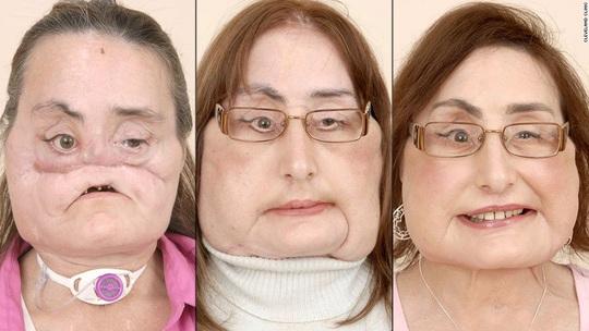 Bệnh nhân ghép mặt sống lâu nhất từ trước đến nay qua đời - Ảnh 2.