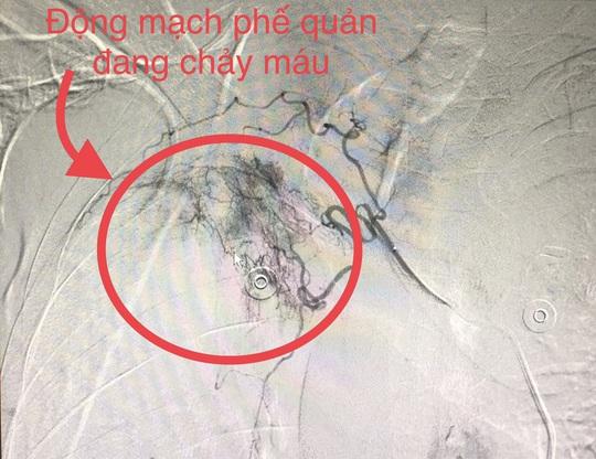 Cứu sống 2 người đàn ông ở Quảng Bình bị ho ra máu sét đánh trước…phút lâm nguy - Ảnh 2.