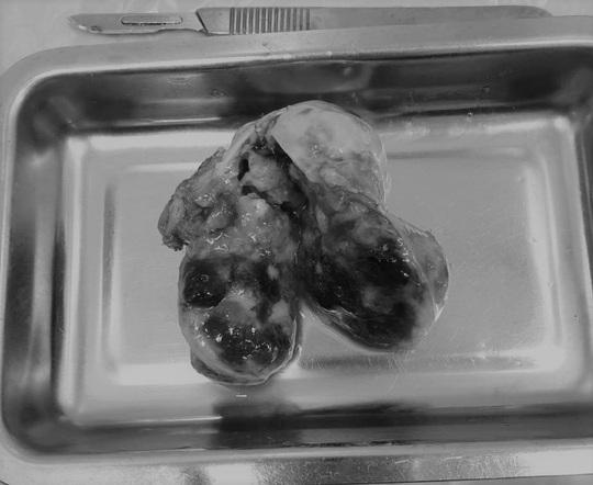 Người phụ nữ có khối đá di động trong tim - Ảnh 1.