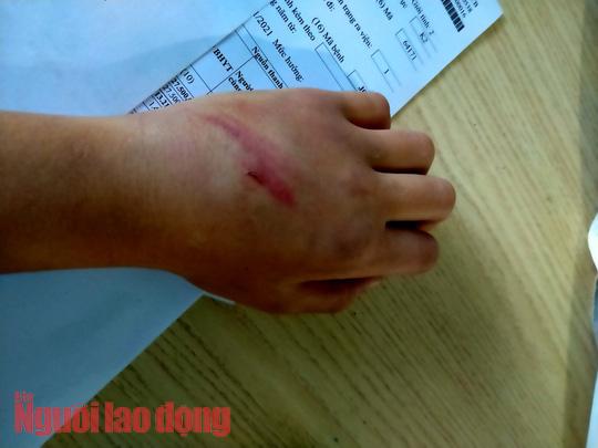 Bé 9 tuổi nghi bị cha bạo hành dã man - Ảnh 2.
