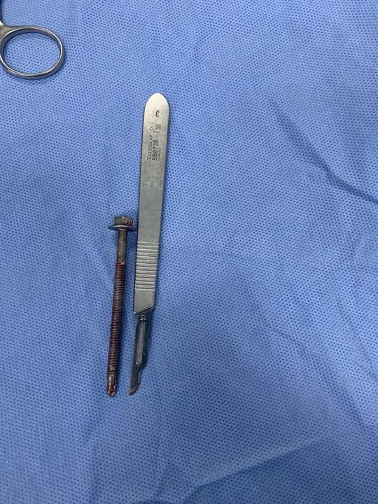Người đàn ông đến bệnh viện với chiếc ốc vít dài 6cm xoáy vào giữa dương vật - Ảnh 1.