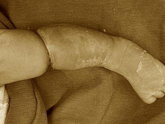 Bé trai 9 ngày tuổi bị hội chứng vòng thắt bẩm sinh hiếm gặp - Ảnh 1.