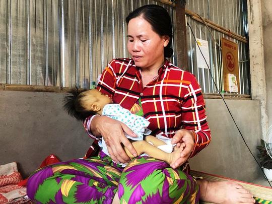 Nhói lòng bé trai 2 tháng tuổi mang 6 căn bệnh hiểm nghèo - Ảnh 5.