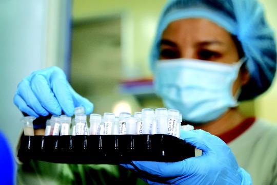 Khoa học đối đầu SARS-CoV-2 - Ảnh 1.