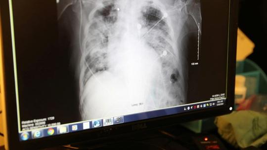 Bệnh nhân xui xẻo, chết vì ghép phổi chứa virus SARS-CoV-2 - Ảnh 1.