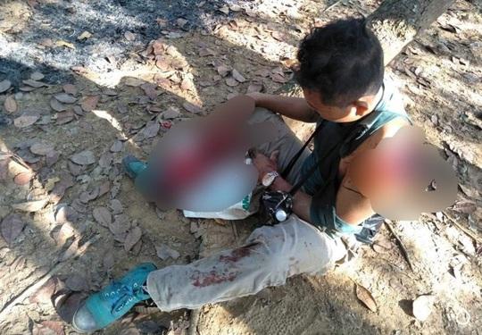 Kinh hãi người đàn ông bị bò tót húc nát vai và chân ở Đồng Nai - Ảnh 1.